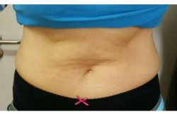 After 1st Session (Flanks & Lower Abdomen)