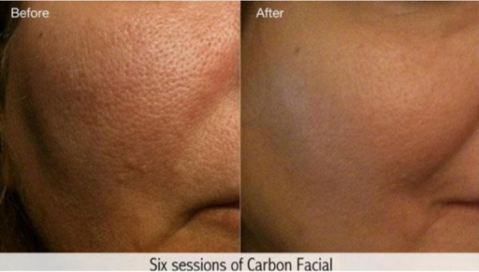 Carbon Facial
